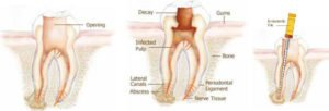 img_root_canal_therapy