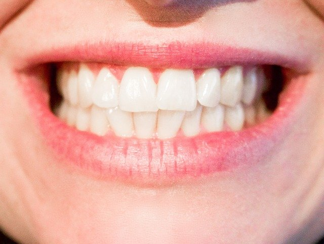 teeth-1652976_640 (2)