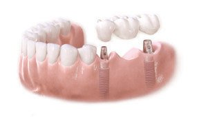 img_dental_implants_01