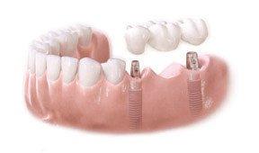 img_dental_implants_01