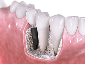 img_dental_implants_02