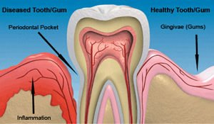 img_periodontal_gum_treatment