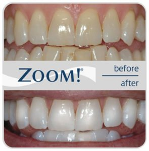 img_zoom_before_after