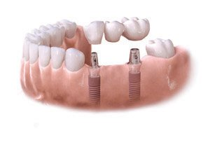 x Astra Tech Dental Implant Bridge and Step3