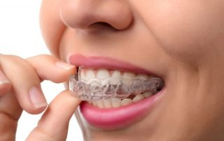 speed-up-invisalign