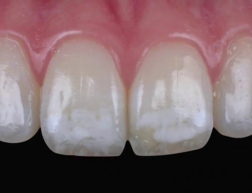 Do You Have White Spots on Your Teeth?