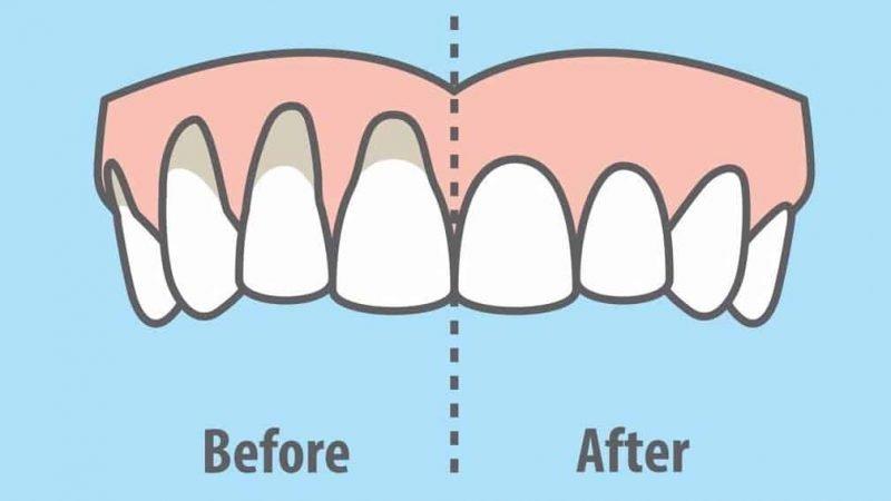 heal-receding-gums